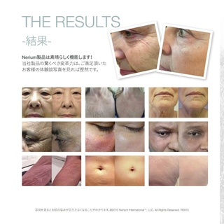 Usja_nerium20difference20product2_7